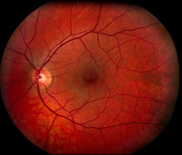 Normal Retina